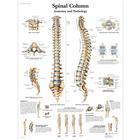 Spinal Column - Anatomy and Pathology, 4006657 [VR1152UU], Csontrendszer