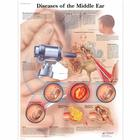 Diseases of the Middle Ear, 4006670 [VR1252UU], Fül, orr, gége
