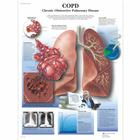 COPD Chronic Obstructive Pulmonary Disease, 1001522 [VR1329L], Légzőrendszer