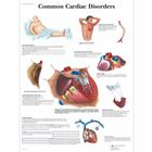 Common Cardiac Disorders, 1001526 [VR1343L], Kardiovaszkuláris rendszer