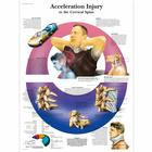 Acceleration Injury to the Cervical Spine, 4006724 [VR1761UU], Csontrendszer